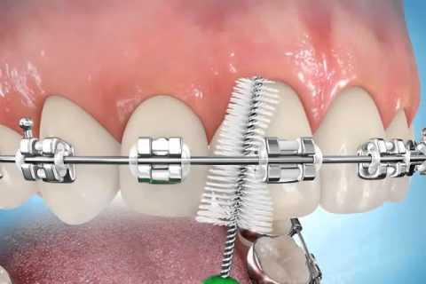 Resultado de imagem para tartaro aparelho ortodontico