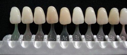 Facetas de resina composta e de porcelana qual indicação para cada caso 6