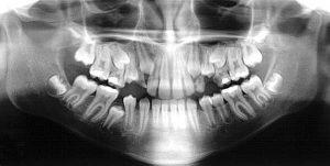 perda do dente de leite - odontomania