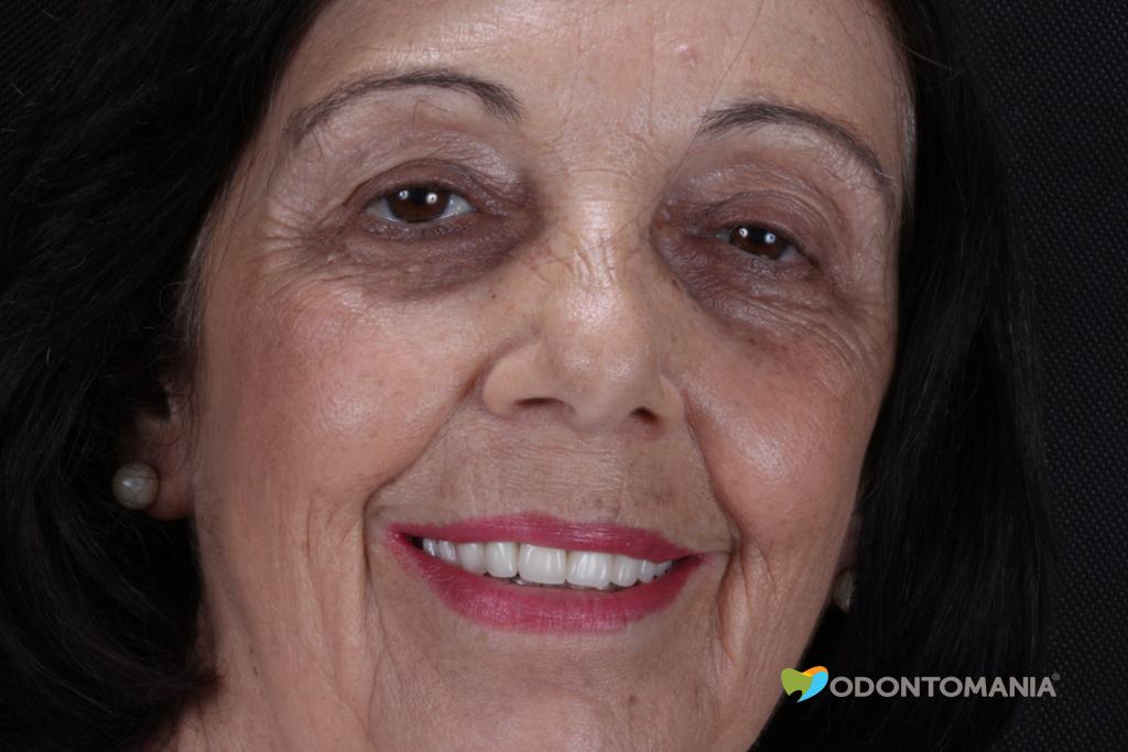 ensaio-fotografico-dentadura-fixa-em-implantes-leila-chama-barbosa-sao-paulo-sp(58).jpg