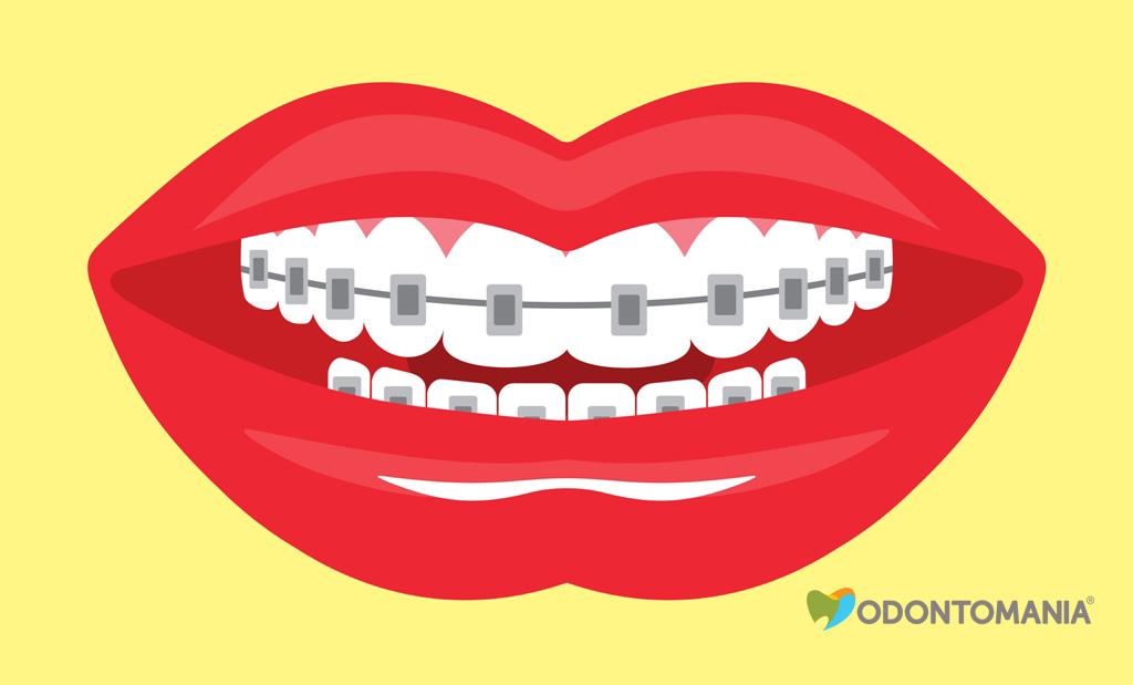 aparelhos-auto-ligados-clinica-odontomania
