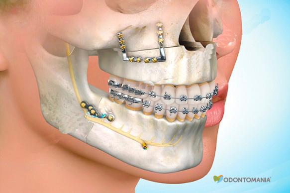 cirurgia-ortognatica-clinica-odontomania