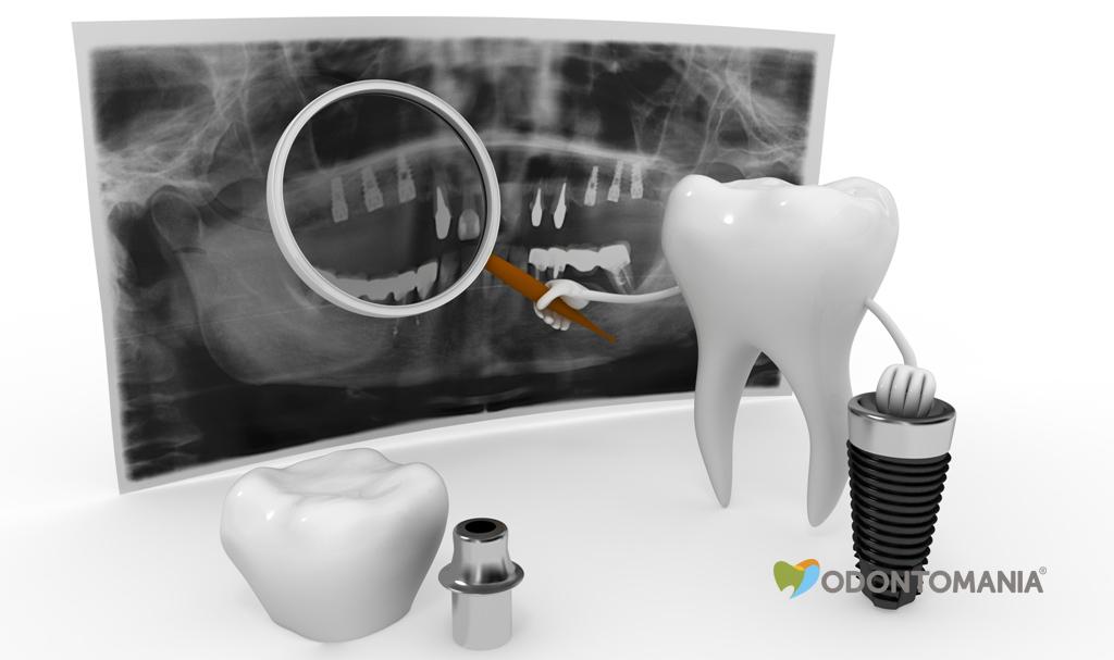 como-funciona-o-implante-dentario