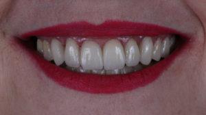 lentes-de-contato-dentais-clinica-odontomania-limao-sao-paulo-sp(9).jpg