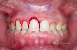 plastia-gengivel-clinica-odontomania-sao-paulo-zona-norte