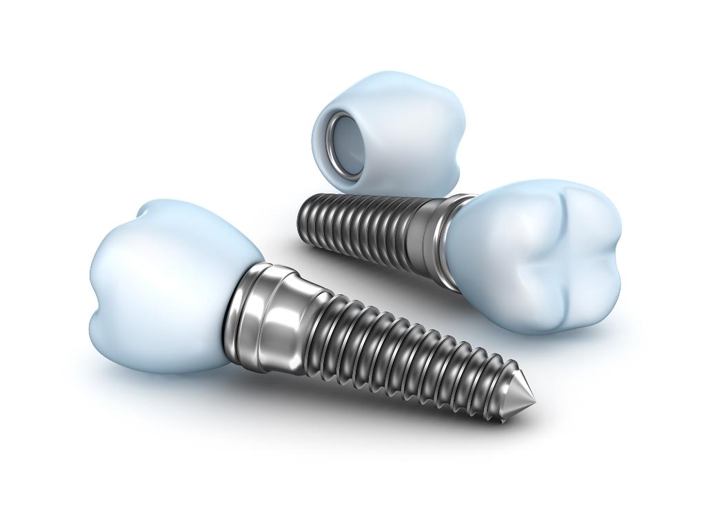 implantes-dentarios-clinica-odontomainia-limao-sao-paulo