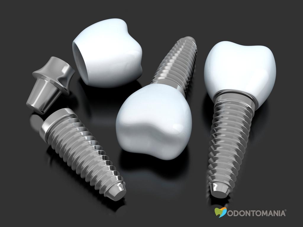 implante-dentário-clinica-odontomania