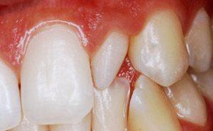 dente-conoide