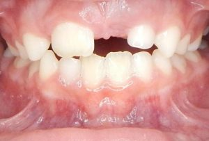 INTRA-BUCAL FRONTAL