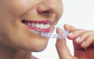 aparelho-transparente-clinica-odontomania