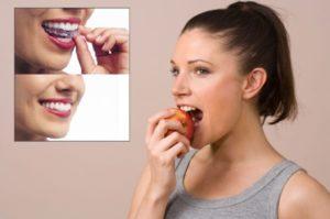 invisalign-clinica-odontomania