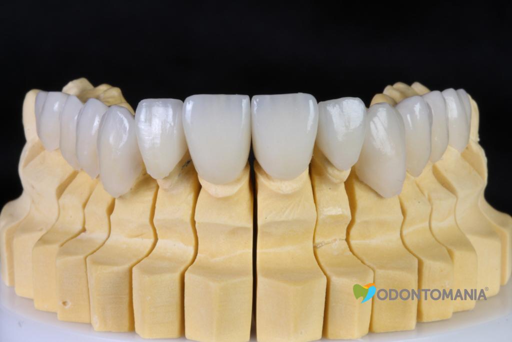 6-duvidas-sobre-lentes-de-contato-dentais