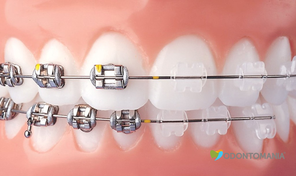 aparelho-de-porcelana-clinica-odontomania1