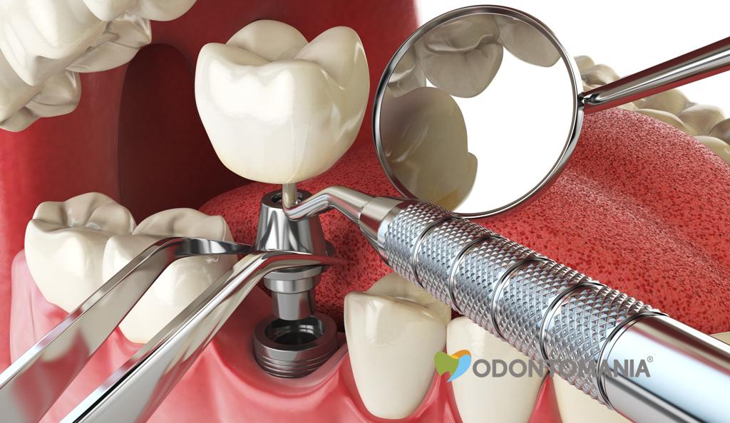 Tcomo-fazer-seu-implante-dentário-dar-certo