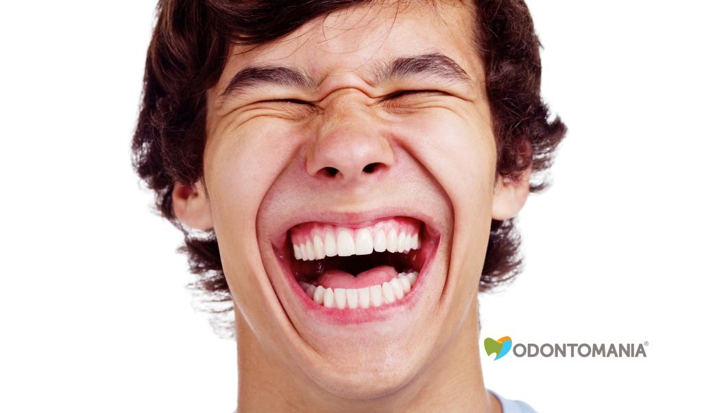 sorriso-gengival-clinica-odontomania