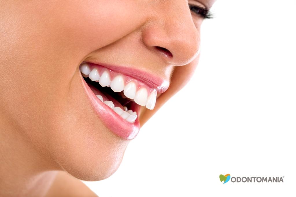 clareamento-dental-clinica-odontomania