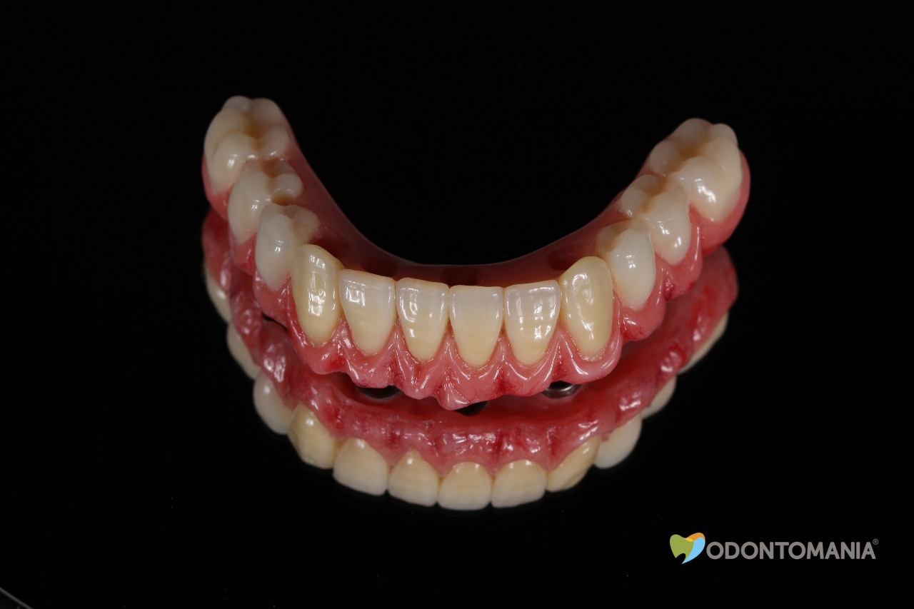 dentadura-fixa-em-implantes-clinica-odontomania